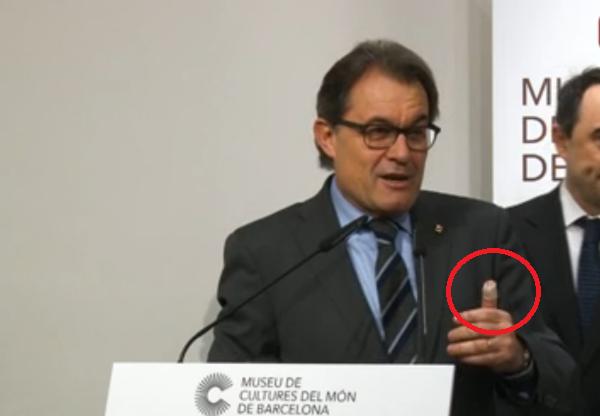"""Artur Mas, herido en el pulgar, critica """"la mentalidad cerrada"""" y la actitud """"antigua y raquítica"""" de Rajoy"""
