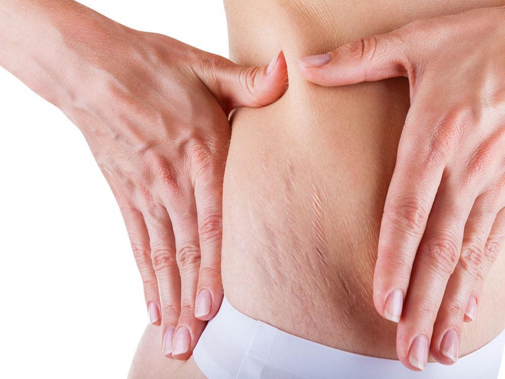 Más del 90 por ciento de las mujeres y un buen porcentaje de hombres tienen celulitis.