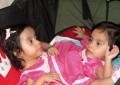 """Las siamesas """"Las Rositas""""separadas en Guatemala se recuperan """"satisfactoriamente"""""""