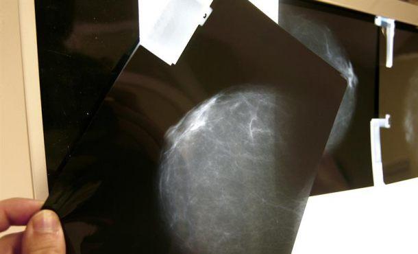 La detección precoz del cáncer de mama consiguió reducir en un 20 % la mortalidad