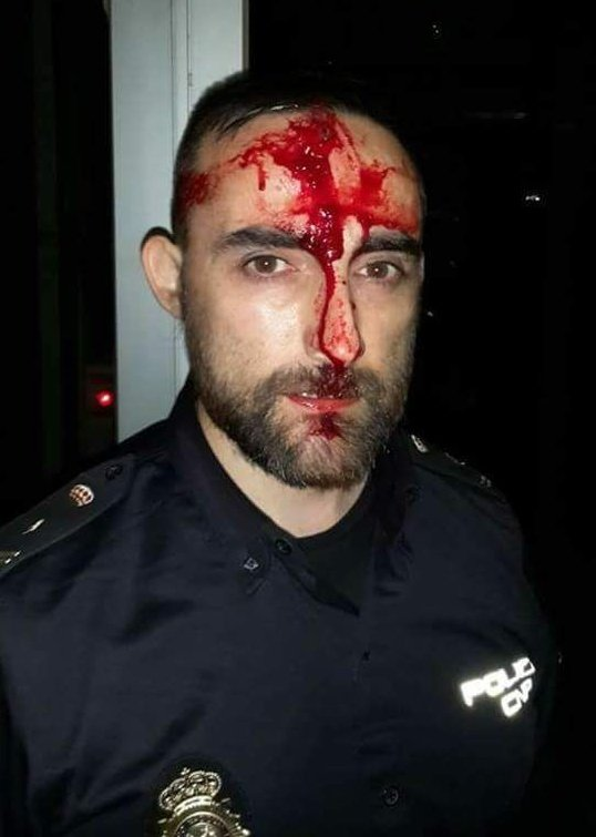 La intifada golpista de Puigdemont deja mal herido a Javier,agente de Policía Nacional (Lérida)