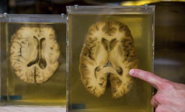 El cerebro de los hombres envejece peor que el de las mujeres