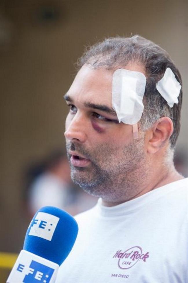 """Turista atacado por inmigrantes en Barcelona: """"El golpe que me dieron ellos fue para matarme"""""""
