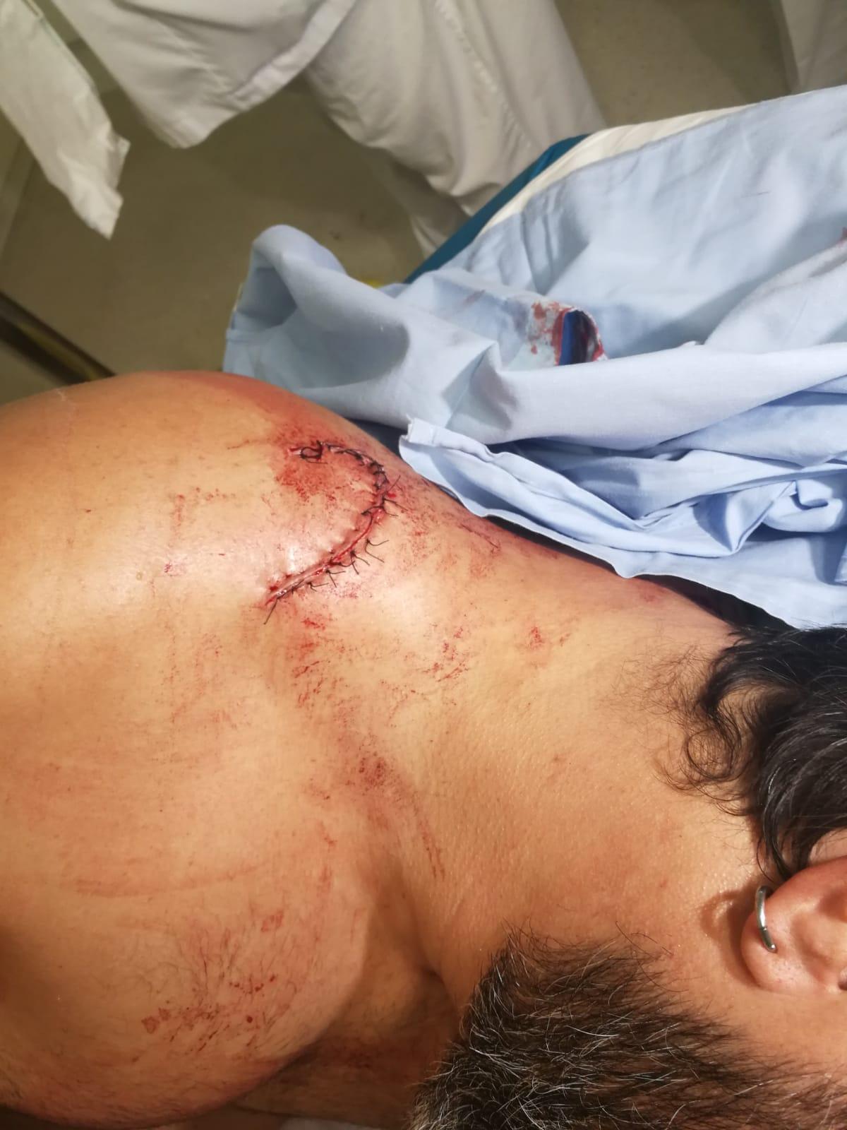 Un vecino con 17 puntos tras ataque de los okupas en La Llagosta (Barcelona)